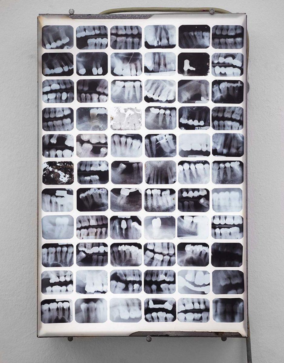 "David le Viseur ""Museum of Pain"", Multimedia Installation, 40x30x6cm, 2016"