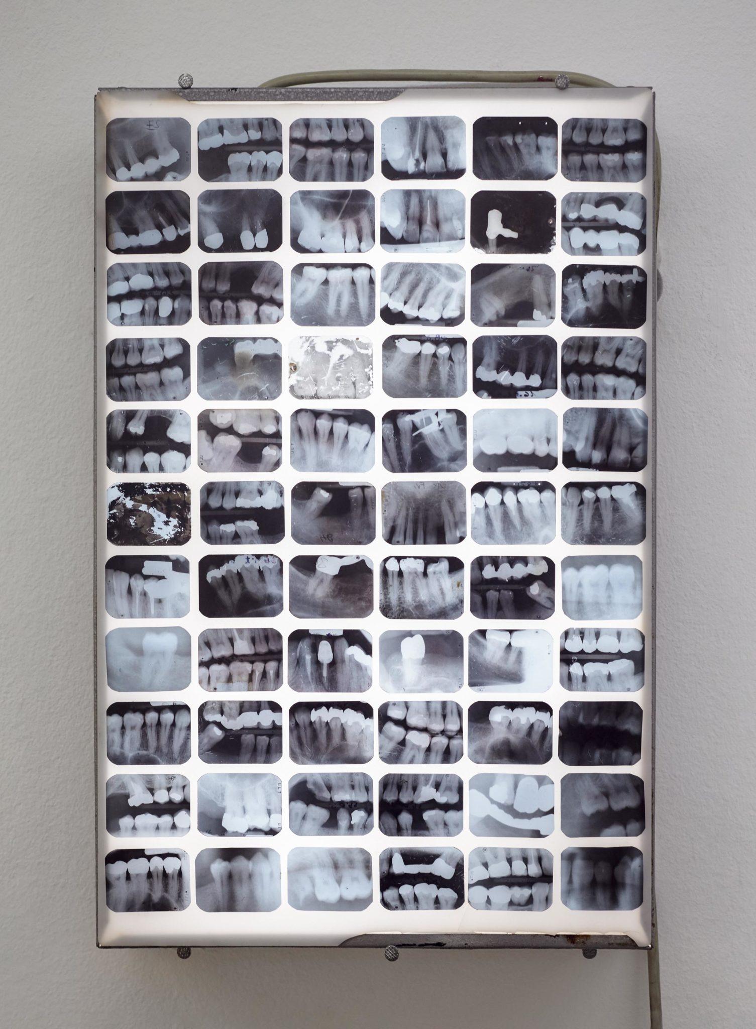 "David le Viseur, ""Museum of Pain"", Multimedia Installation, 40x30x6cm, 2016"